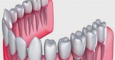 كم عدد أسنان الإنسان الطبيعي