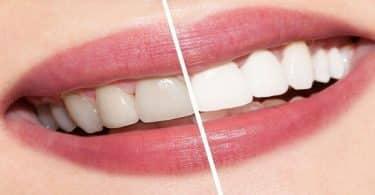 كيفية التخلص من صفار الأسنان