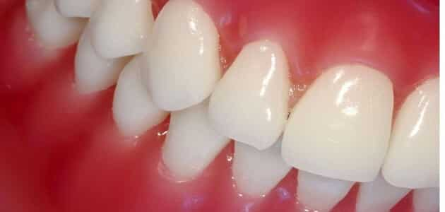 How to keep pink gums