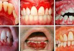 ما سبب خروج الدم من الفم