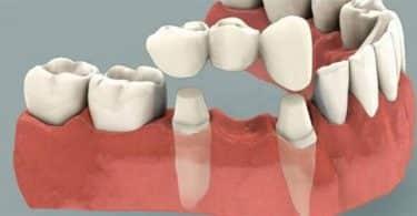 ما هو الجسر بين الأسنان