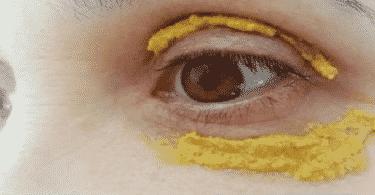 الكركم للهالات السوداء تحت العين