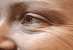فوائد الخميرة لتجاعيد العين