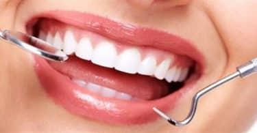 أحدث أنواع تركيبات الأسنان