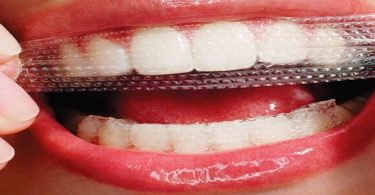 أضرار أنواع لصقات تبييض الأسنان