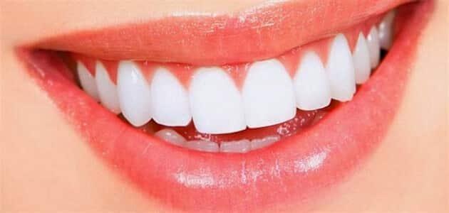 أنواع الوجوه الخزفية للأسنان