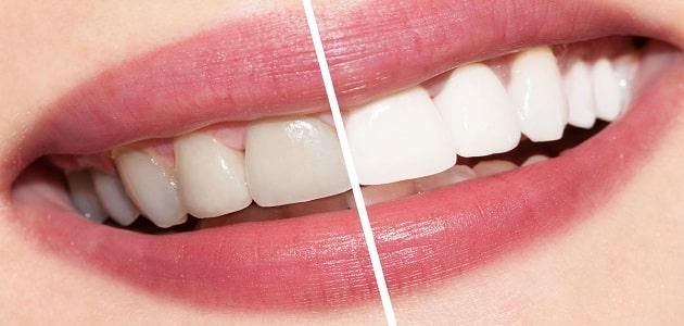 تبييض الاسنان باستخدام الطبيعة من اول مرة