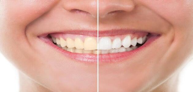 تبييض وتلميع الأسنان بطريقة سريعة