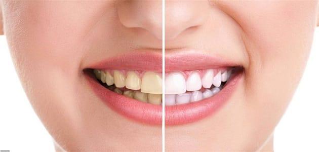 تغيّر لون الأسنان: الأسباب والعلاج الطبيعي