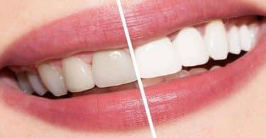 طرق بسيطة وسهلة لتبييض الأسنان