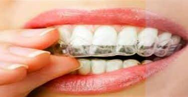 طرق تجميل الاسنان بدون تقويم