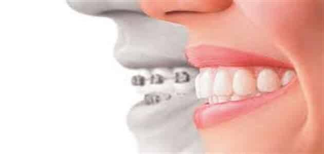 طريقة إزالة تقويم الاسنان في البيت