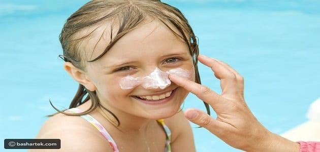 treat sunburn at home