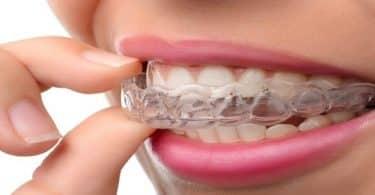 عيوب تقويم الاسنان الشفاف