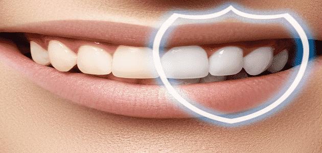 كم مدة تبييض الأسنان