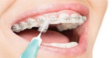 كيفية العناية بتقويم الأسنان