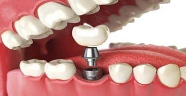 كيفية تركيب الاسنان الثابته