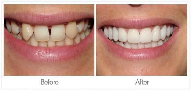 كيفية تقوية الاسنان الضعيفة