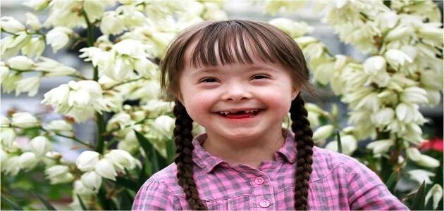 ما هي الية مرض داون
