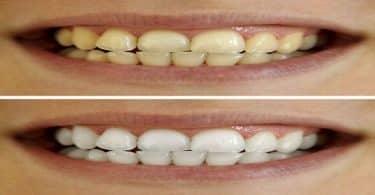 ما هي أسباب اصفرار الأسنان