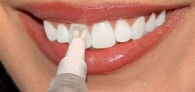ما هي أضرار برد أو نخر الأسنان