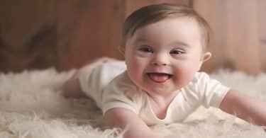 ما هي صفات أطفال متلازمة داون