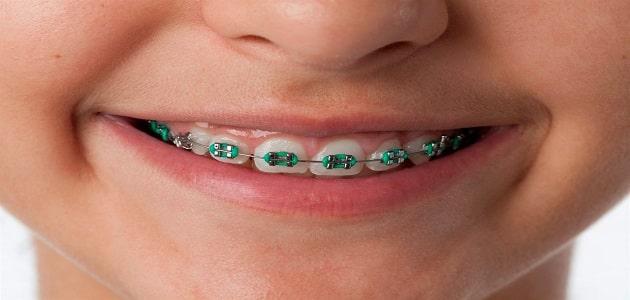 ما هي فوائد تقويم الاسنان واضراره
