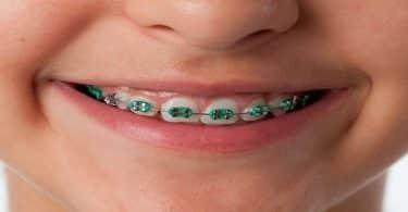 هل تقويم الأسنان ينحف