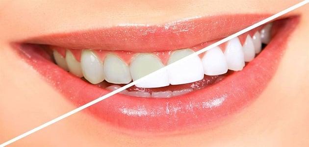 وصفات بيكربونات الصوديوم لتبييض الاسنان
