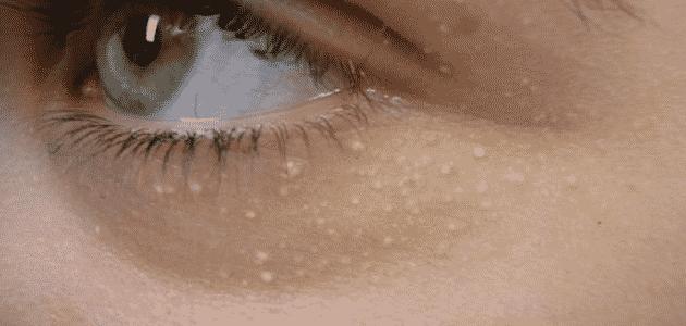 اسباب ظهور خطوط بيضاء تحت العين