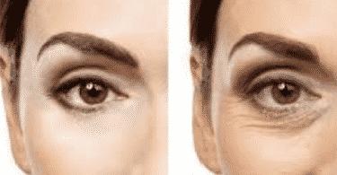 علاج سريع لتخفيف التجاعيد حول العين