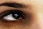 الهالات السوداء تحت العين وعلاجها
