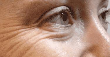 طريقة التخلص من تجاعيد تحت العين