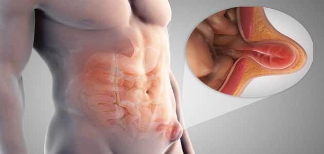 أعراض مرض الفتاق