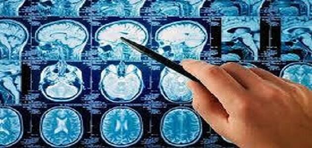 اعراض التهاب غشاء الدماغ