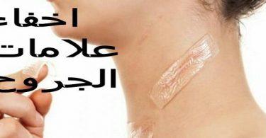طريقة إخفاء علامات الجروح