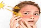 طريقة إزالة أثار الحروق من الوجه