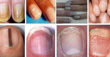 ما أسباب تغير لون الأظافر