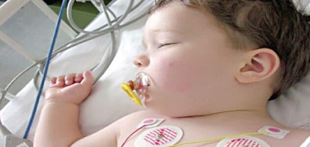 ما القسطرة العلاجية عند الأطفال
