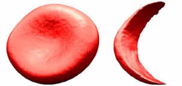 ما هو خضاب الدم الطبيعي