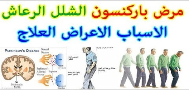 What is Parkinson's disease and its symptoms