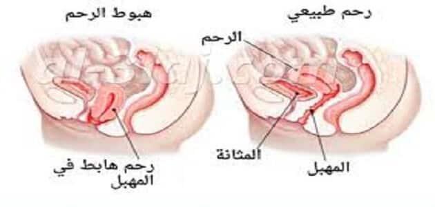 ما هو هبوط الرحم وما هي أسبابه