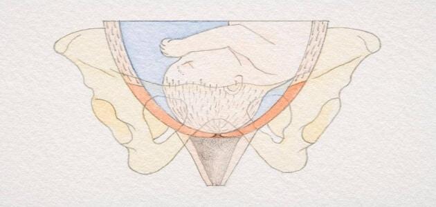 معلومات عن عمليات ربط عنق الرحم
