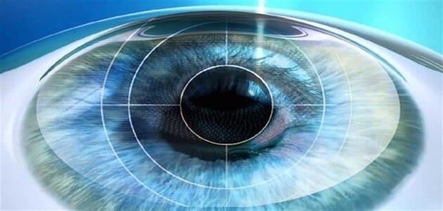 نصائح بعد عملية الليزك للعيون