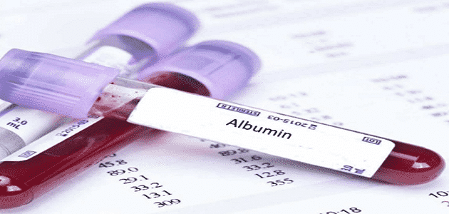 What is the meaning of albumin analysis?