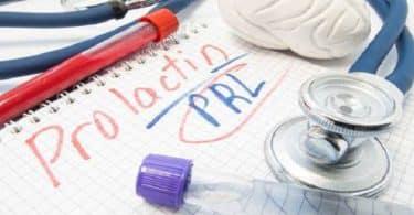 ما هو ال prolactin