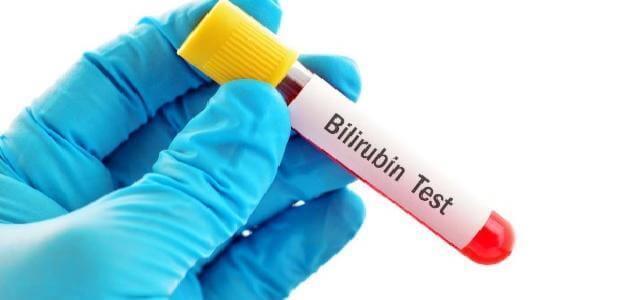 What is the analysis of bilirubin blood