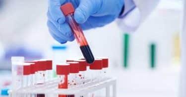ما هو تحليل wbc الطبيعي