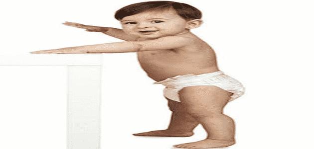 ما هي أعراض مرض الكساح