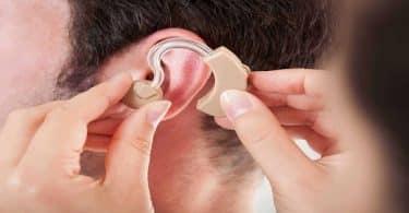 بحث عن الإعاقة السمعية جاهز للطباعة 1